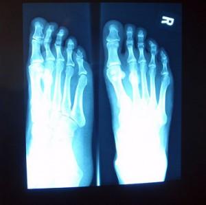 'Tis the season for stress fractures