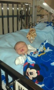 Cole with cleft lip and palate