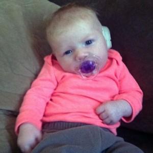 EarWell mold helps correct newborn's congenital ear deformity