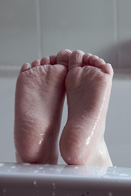 Blisters on the foot bottoms