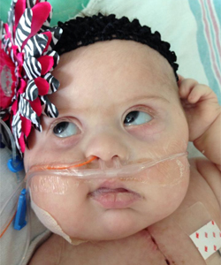 The breathing tube was taken out after almost 6 weeks.