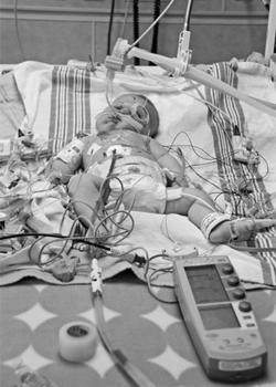 Harper, right after open heart surgery