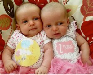 Twins pregnancy transforms Akron Children's employee into patient