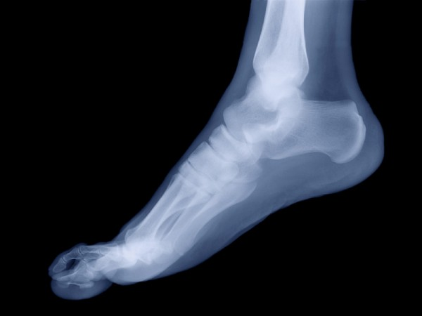 turf-toe