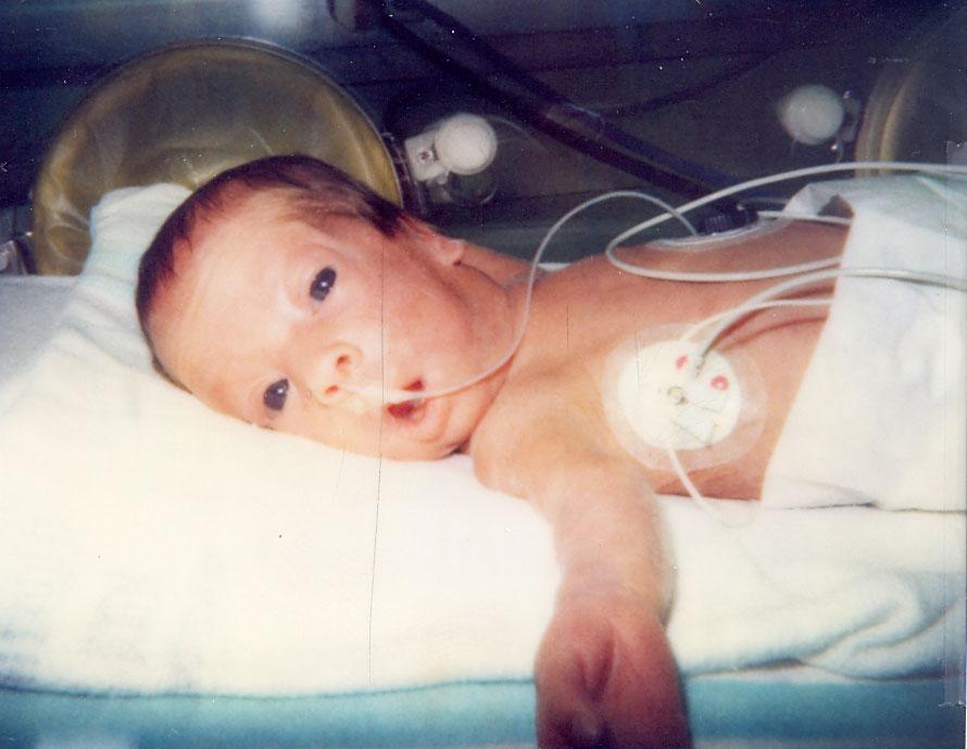 Former preemie offers unique perspective to parents as NICU nurse