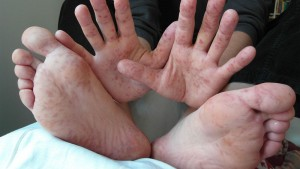"""Hand, foot and mouth disease may be easy to """"spot"""" – (VIDEO)"""
