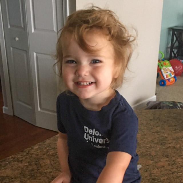Akron Childrens's Craniofacial Sagittal Craniosynostosis success story