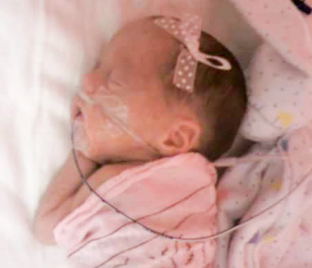 8 Years After NICU, Faith Is In 95th percentile