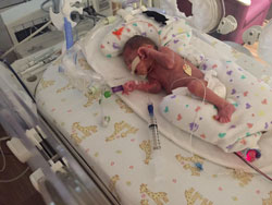 Family celebrates health and happiness as twins turn 1