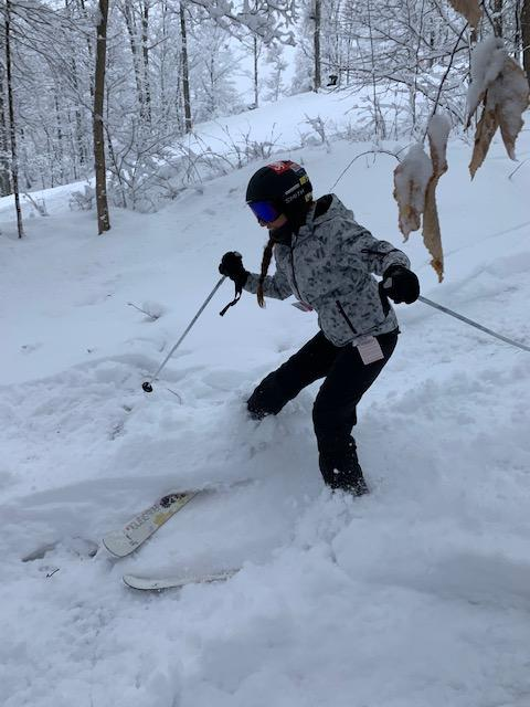 After ACL surgery, teenager once again skis black diamond trails and schusses down mountains