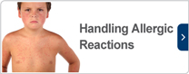 Handling allergic reactions
