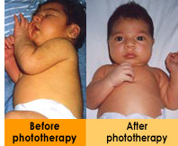 Appearance of a baby with jaundice before and after phototherapy treatments
