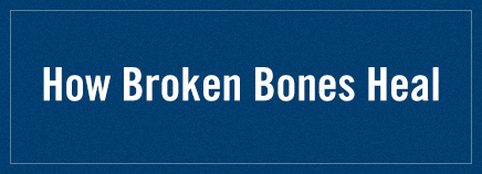 How Broken Bones Heal