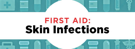 First Aid: Skin Infections