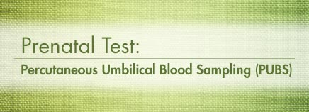 Prenatal Test: Percutaneous Umbilical Blood Sampling (PUBS)