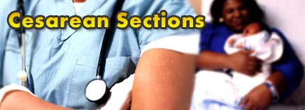 Cesarean Sections (C-Sections)