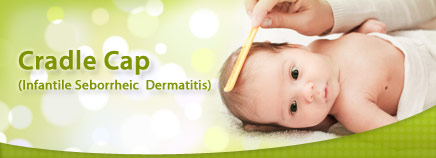 Cradle Cap (Seborrheic Dermatitis) in Infants