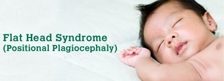 Flat Head Syndrome (Positional Plagiocephaly)
