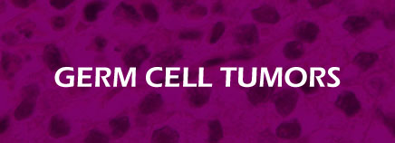 Germ Cell Tumors