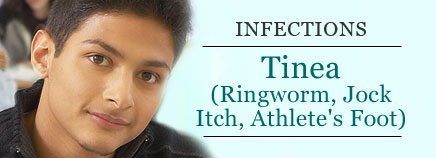 Tinea (Ringworm, Jock Itch, Athlete's Foot)