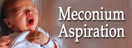 Meconium Aspiration Syndrome (MAS)
