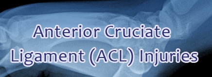 Anterior Cruciate Ligament (ACL) Tears