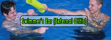 Swimmer's Ear (External Otitis)