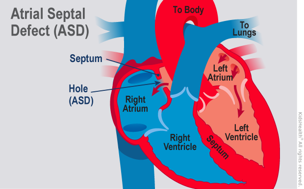 Illustration: Atrial Septal Defect