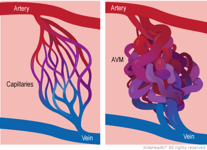 An arteriovenous malformation (AVM) is an abnormal connection between an artery (a blood vessel carrying blood from the heart out to the body) and a vein (a vessel returning blood to the heart).
