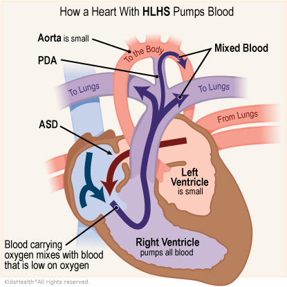Illustration: How a heart with HLHS pumps blood