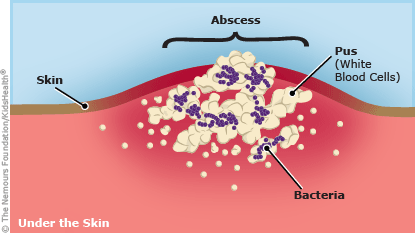 abscess illustration