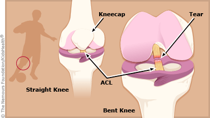torn ACL illustration