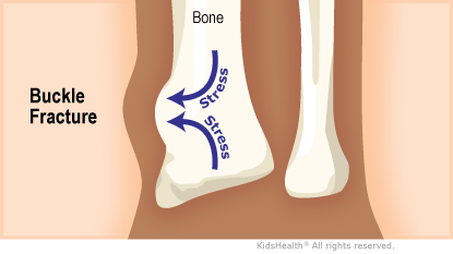Illustration: Buckle fracture