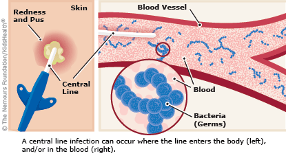 Signs of an infected central line include pus and skin redness, as explained in the article.