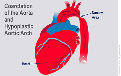 Illustration: Coarctation of the Aorta