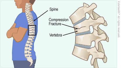 Diagram of the spine showing a compression fracture in one vertebra, as described in the article.