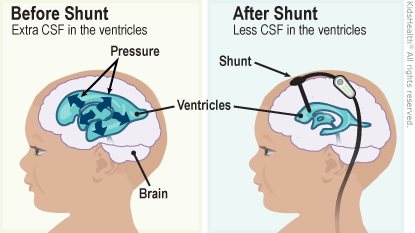 First diagram is before shunt with extra CSF in the ventricles. Second diagram is after shunt with less CSF in the ventricles and shows the shunt in the ventricles.