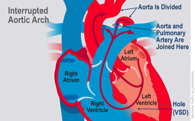 Illustration: interrupted aortic arch