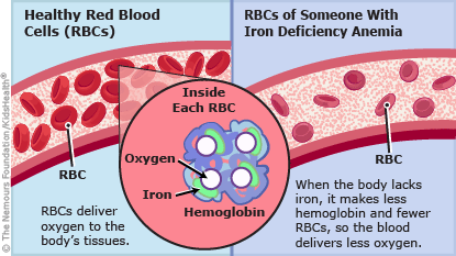 iron deficiency anemia illustration