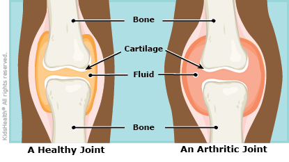 arthritis illustration