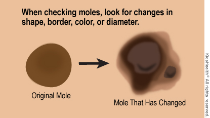 Check moles for changes