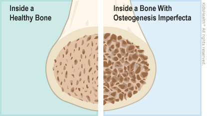 Illustration: Inside a bone with osteogenesis imperfecta