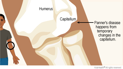 Diagram of bones of elbow. Humerus and capitellum are labeled. Arrow points to capitellum and says Panner's disease happens from temporary changes in the capitellum.