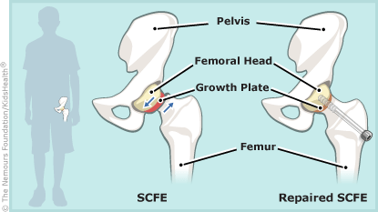 SCFE post-op illustration