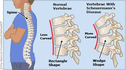 Illustration showing how the vertebrae with Scheuermanns disease is more curved than normal vertebrae.