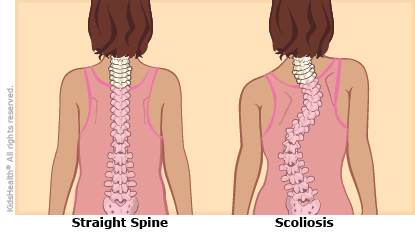 "A comparison of a normal spine, which is straight, and an ""ess"" shaped curve in a spine with scoliosis."