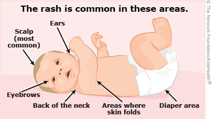 Where babies can get seborrheic dermatitis