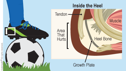 Diagram labels inside the heel, muscle, heel bone, growth plate, tendon, heel bone, and area that hurts