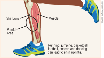 Diagram labels the shinbone, muscle, and painful area on the shin. Running, jumping, basketball, football, soccer, and dancing can lead to shinsplints.