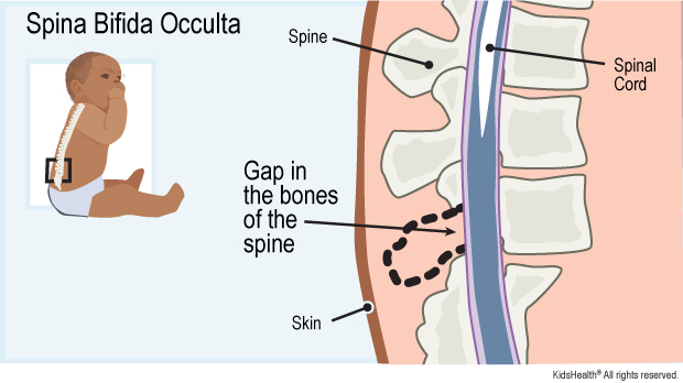 Spina bifida occulta diagram labels spinal cord, spine, skin, gap in the bones of the spine.